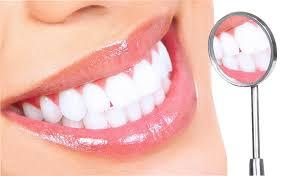 Bỏ túi 5 bí kíp tẩy trắng răng tại nhà an toàn và hiệu quả