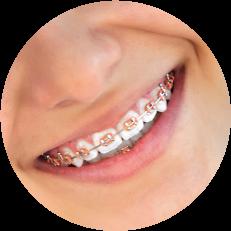 Các loại niềng răng cho người trưởng thành ưa chuộng nhất năm 2019
