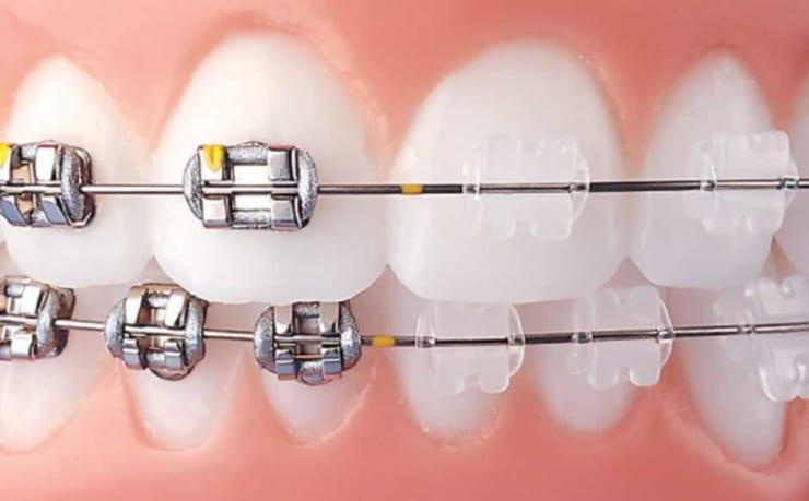 Những điều quan trọng khi niềng răng mắc cài