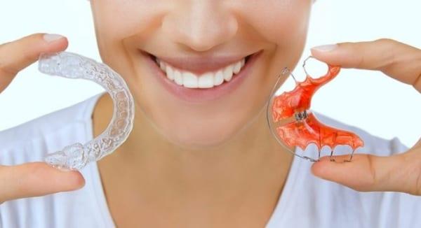 Bạn đã biết về hàm duy trì sau niềng răng?