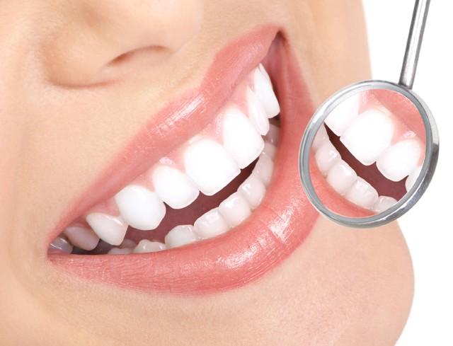 Có nên tẩy trắng răng tại nhà không? Liệu có mang lại hiệu quả như ý?
