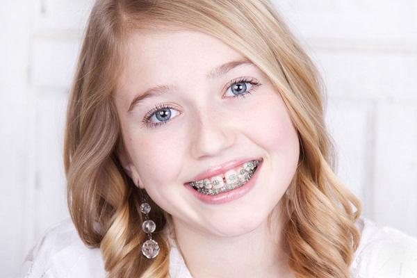 Niềng răng cho trẻ và những dấu hiệu cho thấy trẻ cần chỉnh nha sớm
