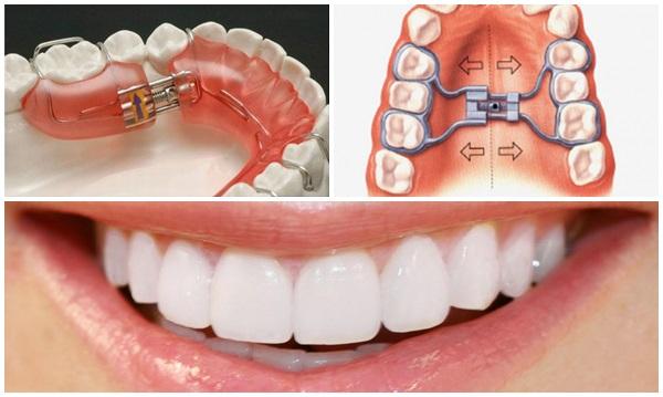 Nong hàm khi niềng răng thường tốn từ 1 – 3 tháng