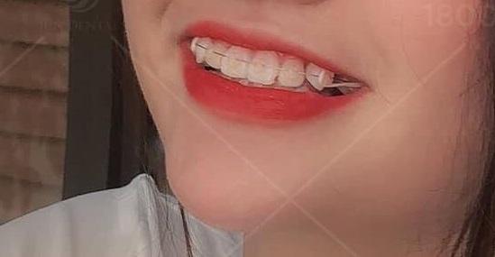 Giá niềng răng tại JunDental giao động từ 25 – 100 triệu cho 3 loại niềng khác nhau