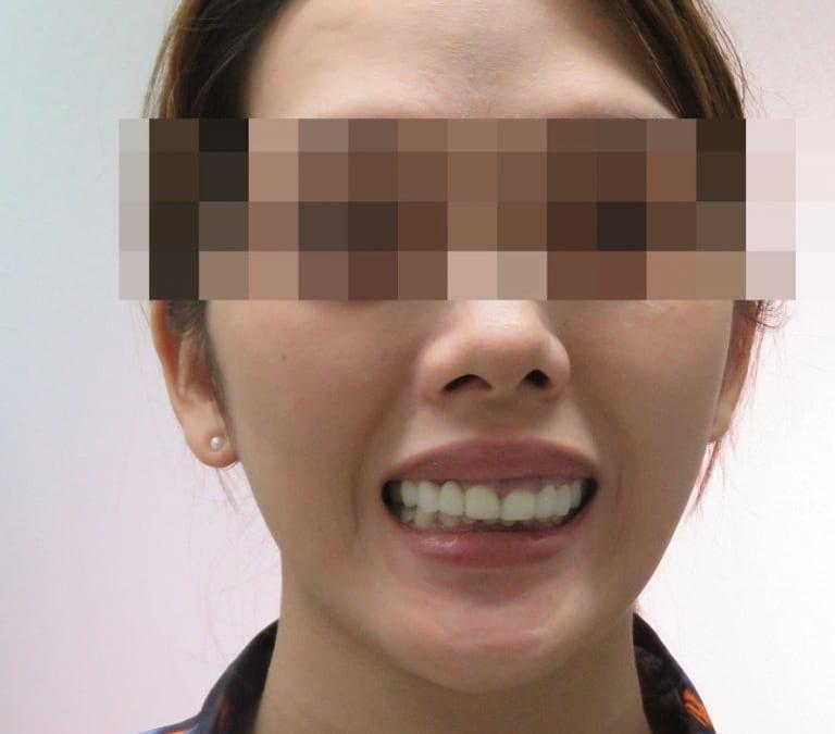 Cô gái 9x mất gần hết hàm răng vì bọc răng sứ giá rẻ