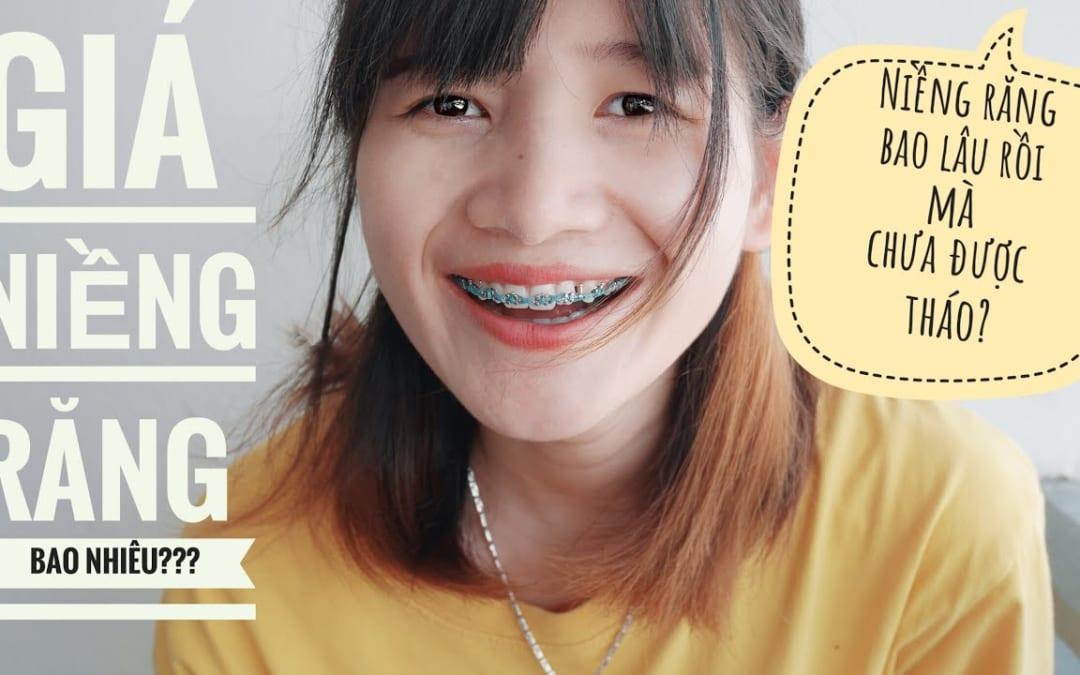 Giá niềng răng tại nha khoa quốc tế JunDental bao nhiêu?