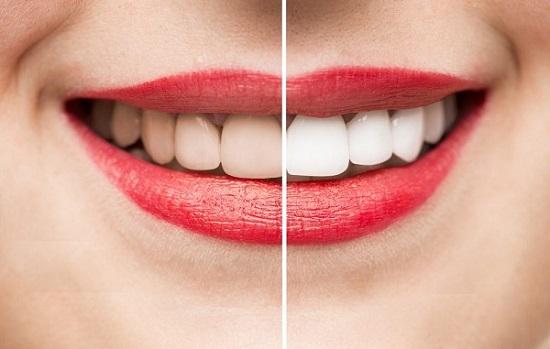 Tẩy trắng răng sẽ giúp loại bỏ những màu vàng ố trên răng hiệu quả, cho hàm răng luôn trắng sáng đều màu