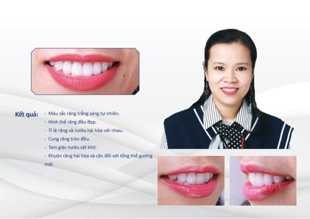 Đặng Thị Hải Hà răng nhiễm tetracycline cấp độ 3