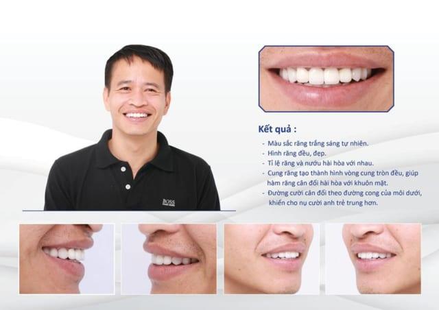 Anh Trần Hồng Tuấn răng nhiễm tetracycline cấp độ 3