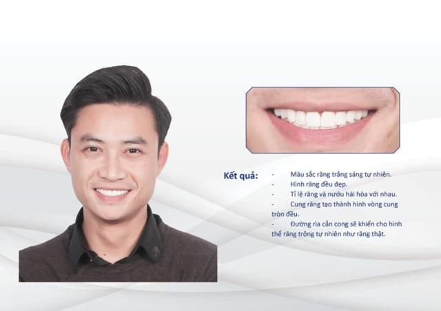 Diễn viên Tiến Lộc – dán sứ Minish Laminate cho răng bị nhiễm tetracyline