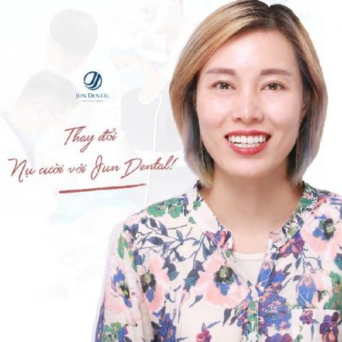 Thu Trang răng nhiễm tetracyline nhẹ