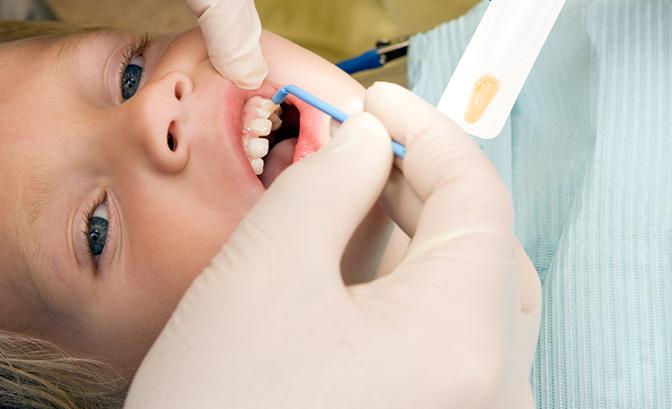 Trẻ bị sâu răng hàm có nên nhổ hay không?