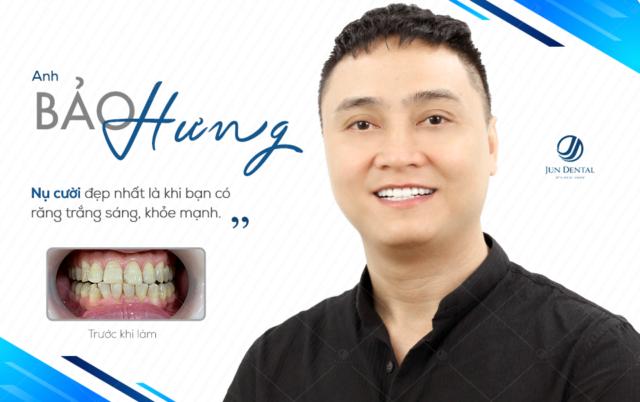 Bọc sứ thẩm mỹ là phương pháp giúp khắc phục mọi khuyết điểm của răng cho hàm răng đẹp và khỏe hơn