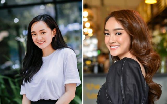 Kaity Nguyễn cũng từng có phần răng 2 bên hơi nhỏ và nhọn. Sau khi cải thiện phần răng khấp khểnh đã giúp nụ cười cô nàng trở nên tươi tắn và rạng rỡ hơn.