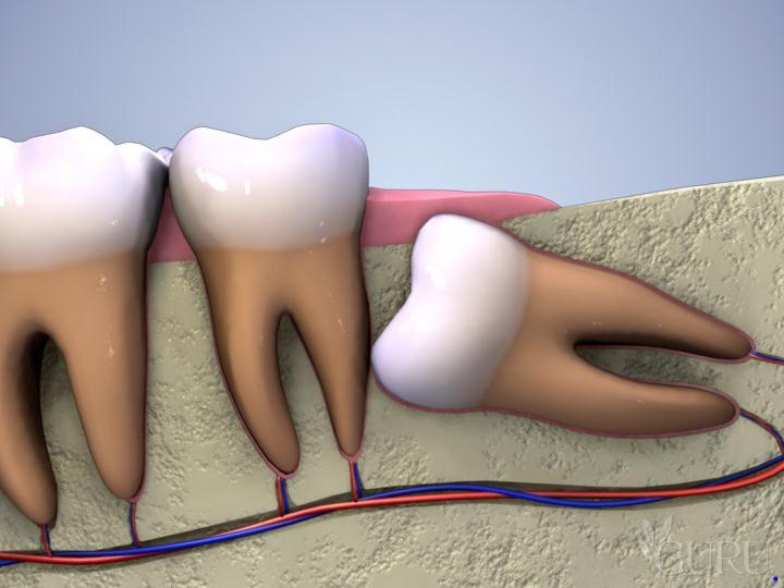 Khi nào bạn nên nhổ răng khôn? Nhổ răng khôn để làm gì?