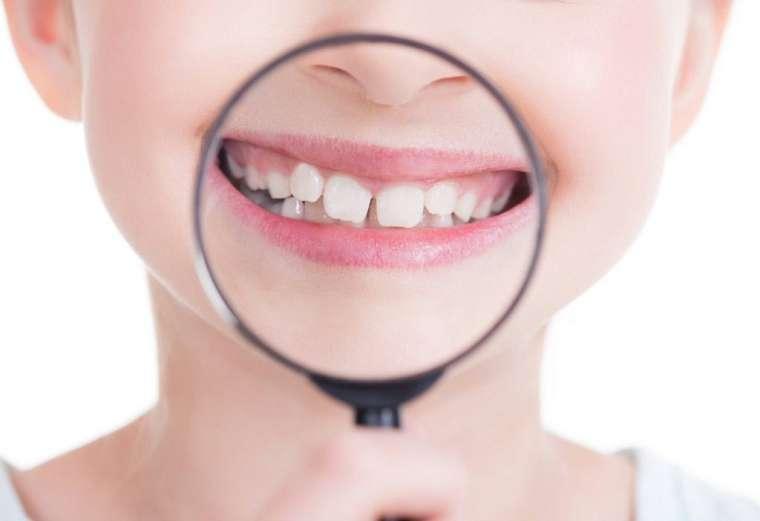 Sự khác biệt giữa răng sữa và răng trưởng thành có thể bạn chưa biết