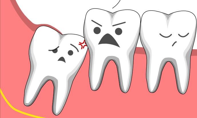 Răng khôn mọc lệch và tác hại không ngờ mà bạn cần biết