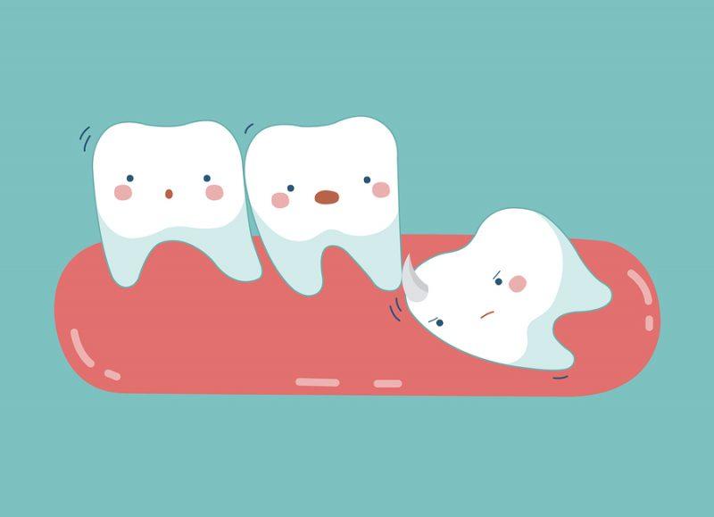 Nhổ răng số 8 có nguy hiểm không? Lời giải đáp từ chuyên gia