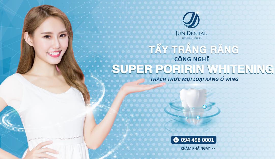 Công nghệ tẩy trắng răng Super Poririn Whitening làm mưa làm gió tại Nhật Bản đã có mặt ở Việt Nam