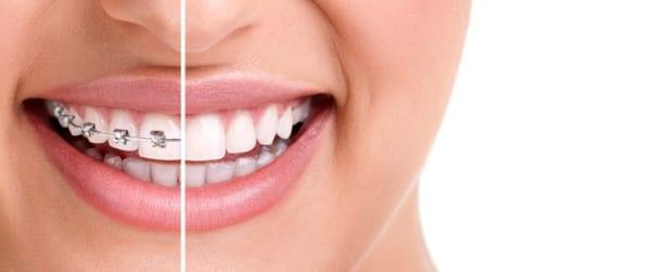 Khi nào nên nhổ răng trước khi niềng?