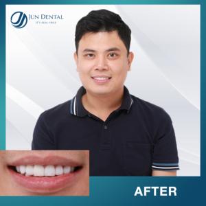 Bọc răng sứ thẩm mỹ để khắc phục toàn bộ những khuyết điểm của răng, cho bạn hàm răng trắng sáng, khỏe mạnh