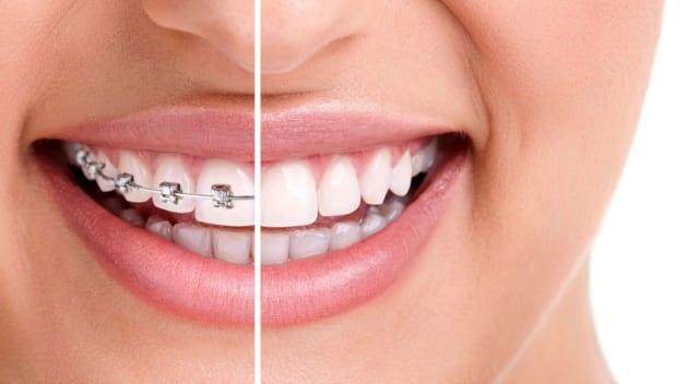 Niềng răng sẽ ảnh hưởng tới giọng nói của bạn, tuy nhiên chỉ diễn ra một vài buổi đầu và dần ổn định lại dần nói chuyện lại bình thường