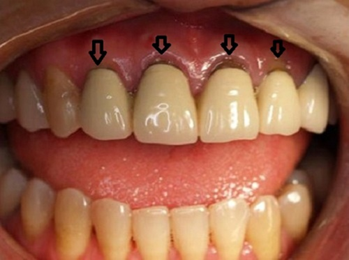 Nguyên nhân nào dẫn đến bọc, dán răng sứ lỗi hỏng