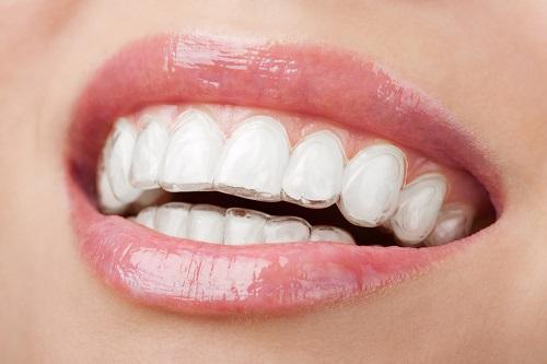 Niềng răng không mắc cài và những thông tin cần biết
