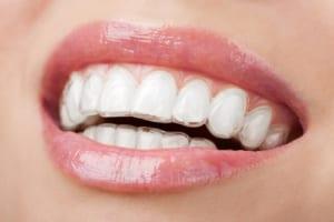 Niềng răng không mắc cài loại bỏ mọi khuyết điểm của răng, đảm bảo tính thẩm mỹ cao