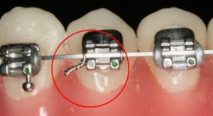 Niềng răng sẽ làm ảnh hưởng ít nhiều tới quá trình sinh hoạt và ăn uống của bạn