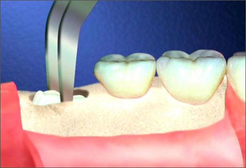 Trước khi nhổ răng khôn, bệnh nhân nên lựachọn trung tâm nha khoa uy tín đảm bảo tính an toàn cao