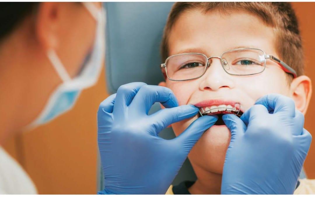 Niềng răng cho trẻ: Nên hay không?