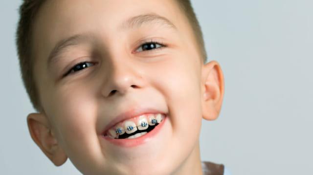 Niềng răng cho trẻ ở độ tuổi từ 6 – 17 tuổi là thích hợp nhất