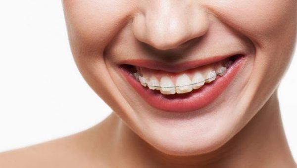 Niềng răng hô mất bao lâu thời gian?