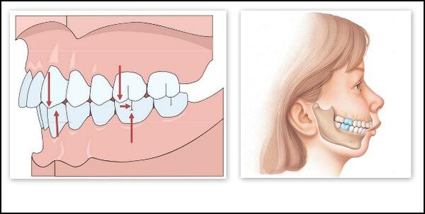 Niềng răng hô sẽ giúp chỉnh hình dáng răng về đúng hướng mang tính thẩm mỹ hơn và tránh được các bệnh lý của răng