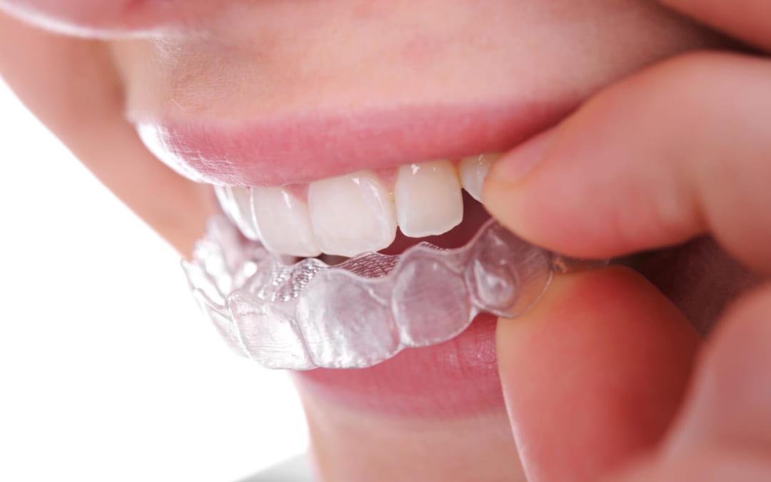 """Tại sao niềng răng không mắc cài lại trở thành """"trend"""" năm 2019?"""