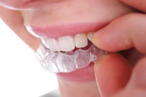 Niềng răng không mắc cài được thiết kế ở dạng trong suốt nên rất khó bị phát hiện ngay cả khi đang niềng