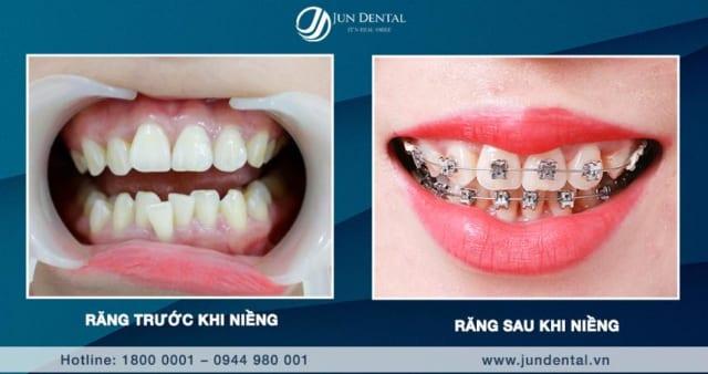 Niềng răng không chỉ làm đẹp, còn giúp thay đổi số phận khó khăn thêm tốt đẹp và thuận lợi hơn