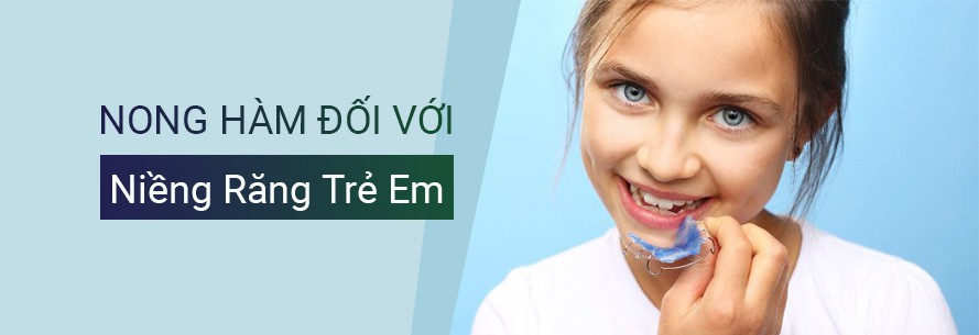 Nong hàm khi niềng răng cho trẻ và tầm quan trọng của nong hàm