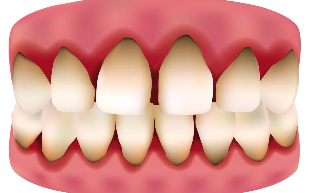 Danh sách thuốc Điều Trị Viêm Lợi – Chảy Máu Chân Răng