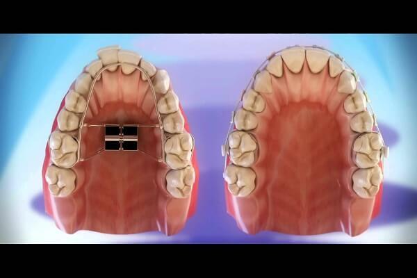 Nong hàm khi niềng răng cho trẻ có tác dụng phòng ngừa các tình trạng răng mọc chen chúc, lệch lạch