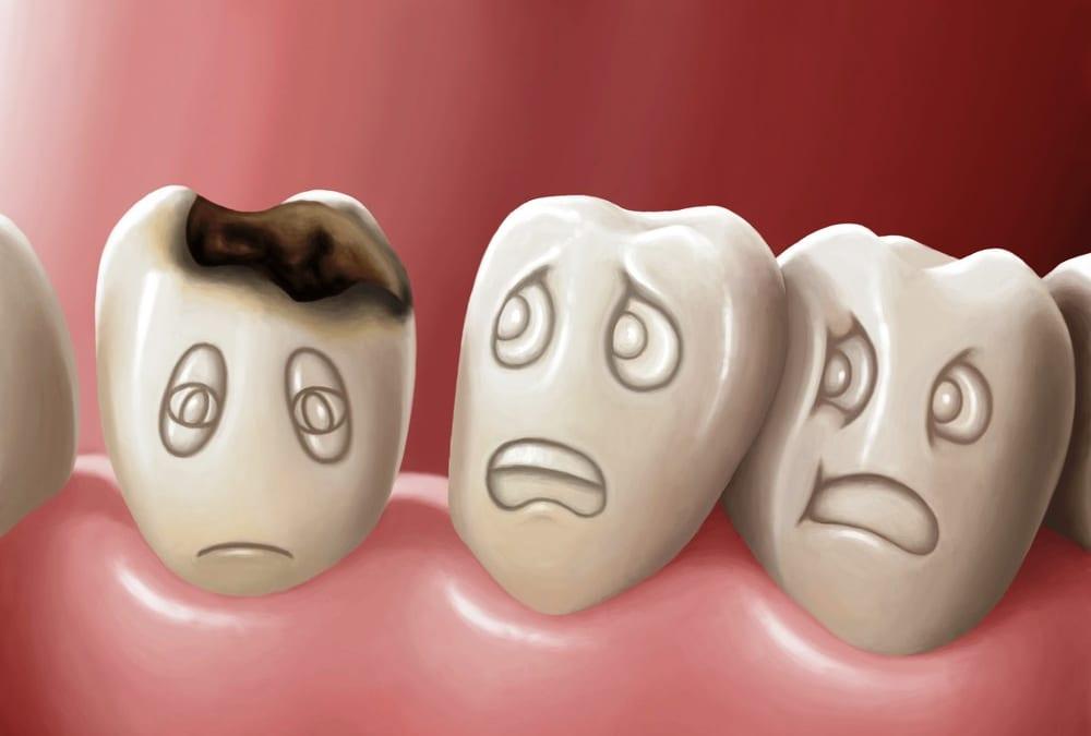 Những dấu hiệu nhận biết sâu răng mà bạn cần lưu ý