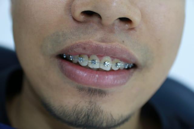 Giá thành của niềng răng mắc cài kim loại bao nhiêu?