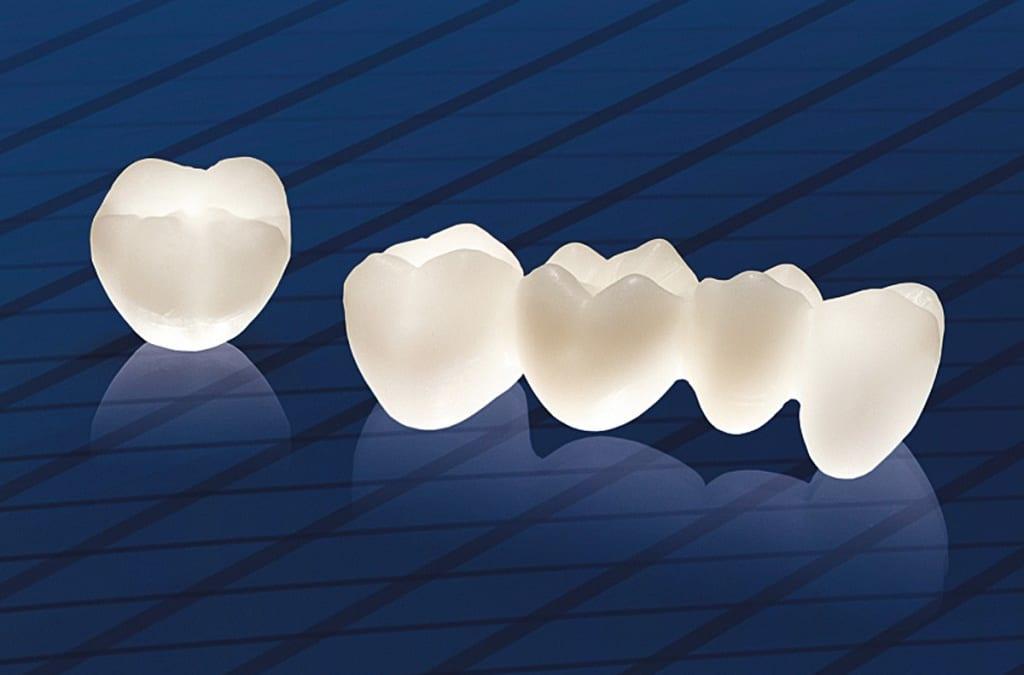 Quy trình bọc răng sứ chuẩn Quốc tế được diễn ra như thế nào?