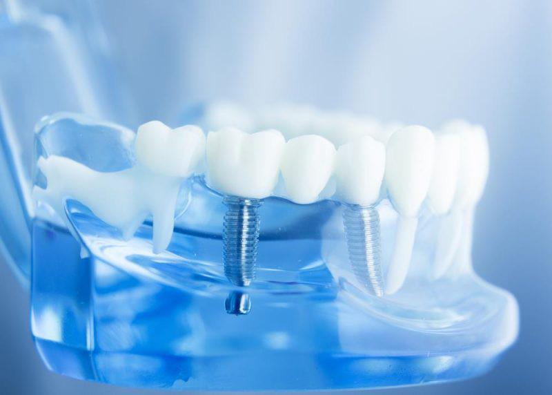 Tại sao phải cấy Implant ngay sau khi nhổ răng?