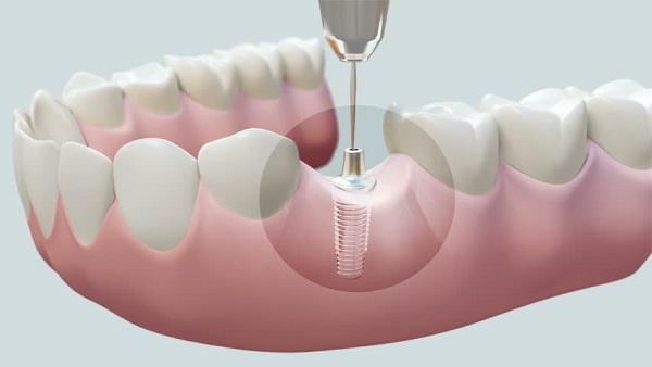 Cấy ghép Implant là kĩ thuật trồng răng giả vào những vị trí đã mất răng vĩnh viễn