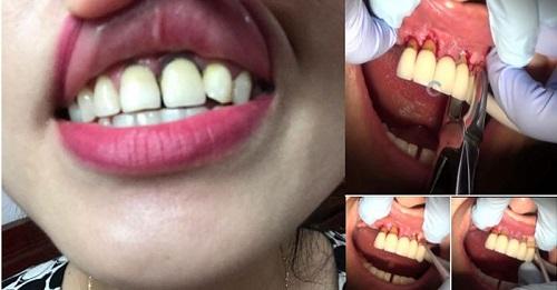 Bất chấp sức khỏe khách hàng nhiều cơ sở thẩm mỹ dùng chiêu trò giảm giá cực sâu để thu hút khách hàng tới làm răng sứ
