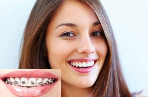 Kết quả hình ảnh cho niềng răng bị hóp má