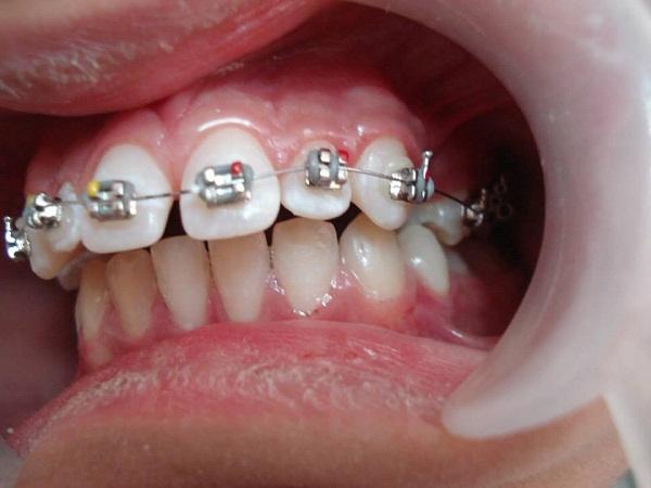 Niềng răng hàm hô có đạt hiệu quả như ý?