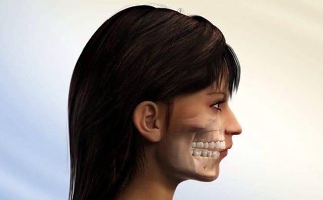 Hô nhẹ nên niềng răng hay dán sứ thẩm mỹ?